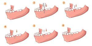 the steps of dental implant placement
