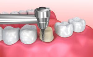 Preparing a tooth for a dental crowns