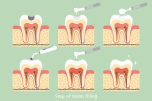 Steps of a dental filling