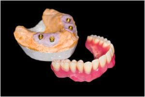 implanted dentures close up
