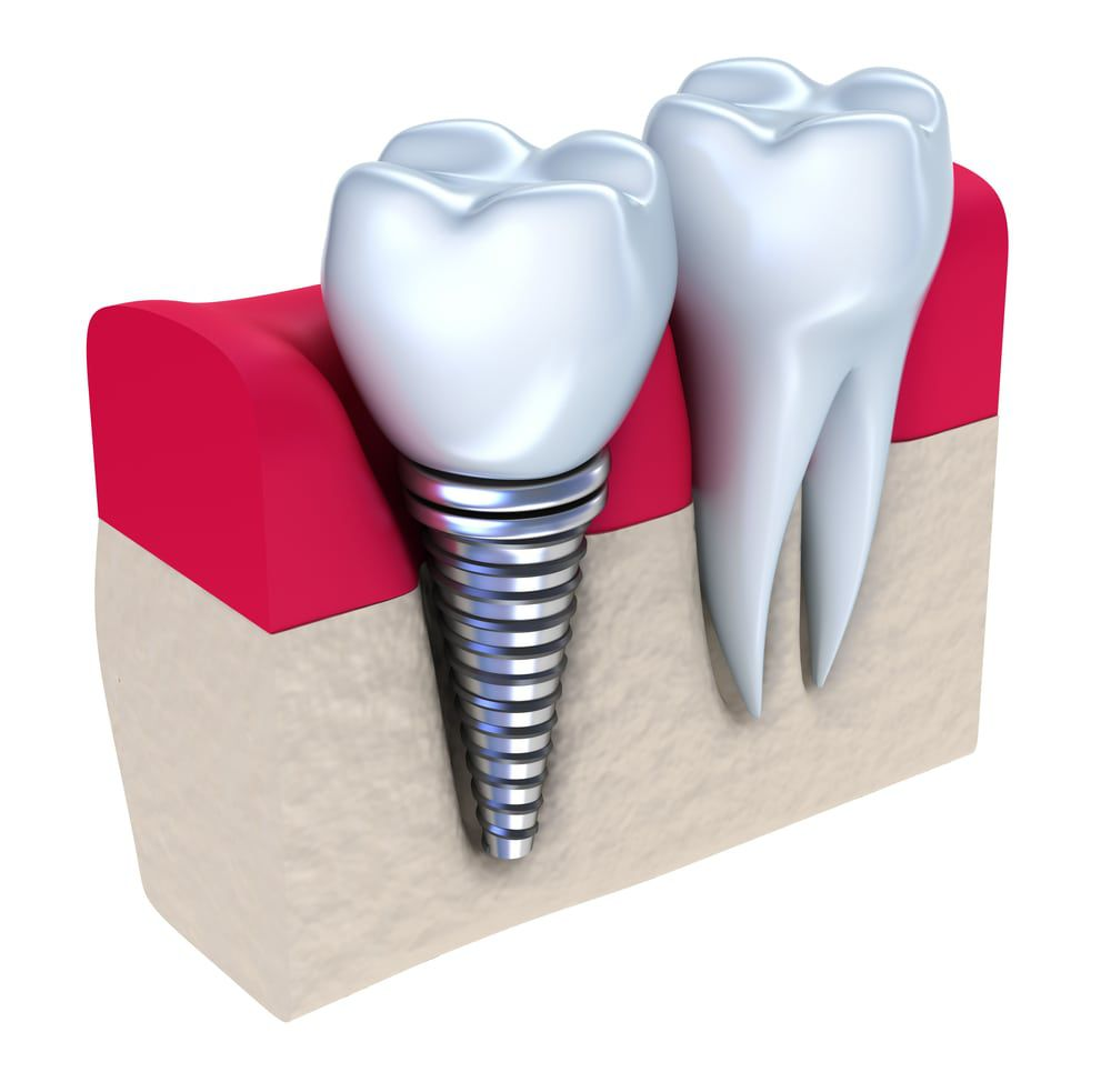 3d graphic of dental implant